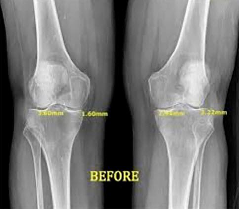Knee Pain Relief Stem Blue Diamond Physical Medicine